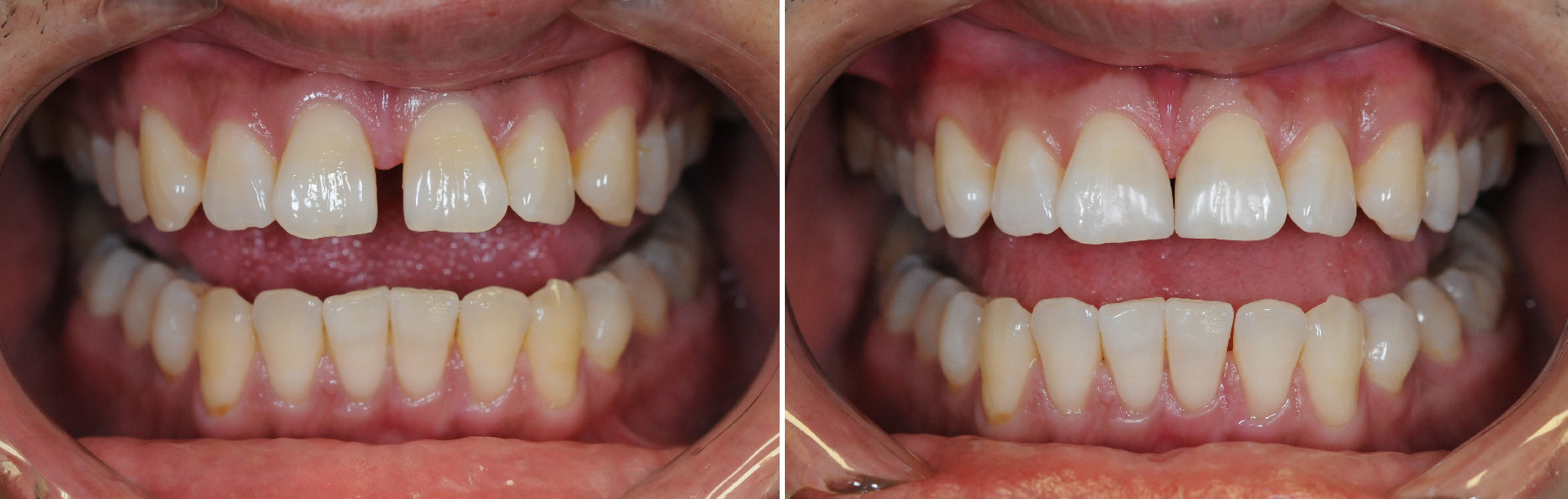 Bonding Case 4 Before & After