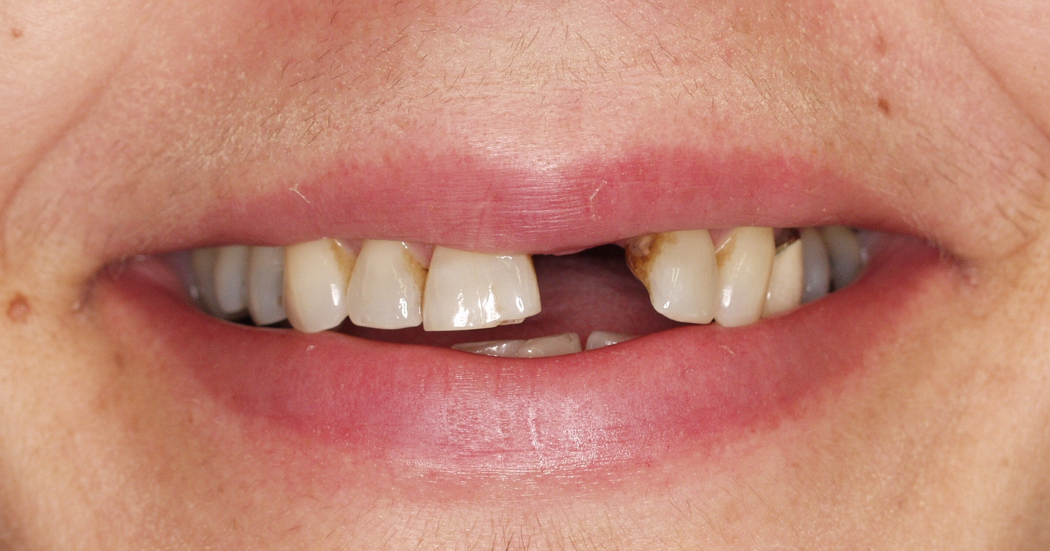Patient missing one tooth and unhappy with wearing a denture