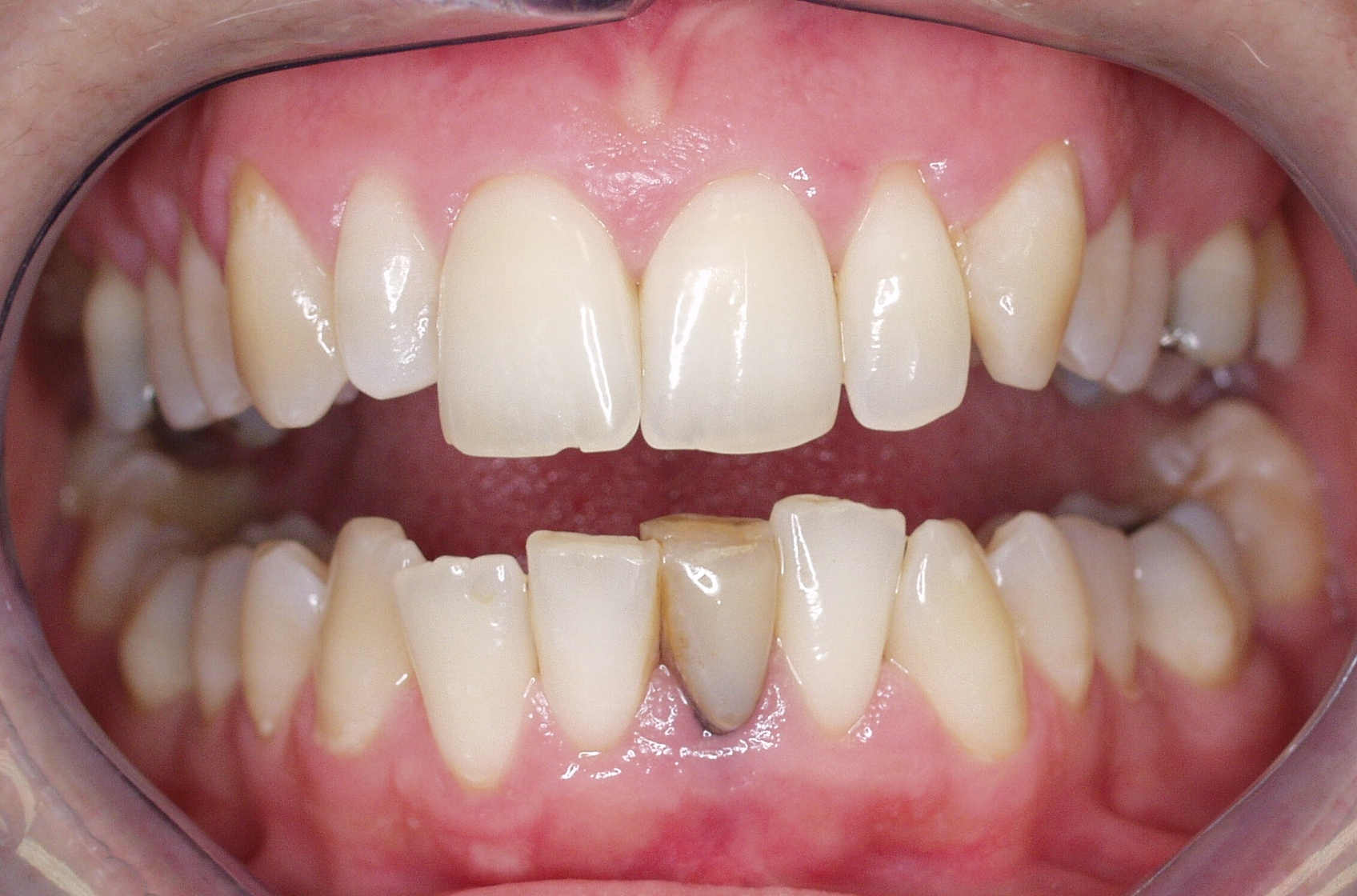 Patient's front lower tooth became damanged beyond repair