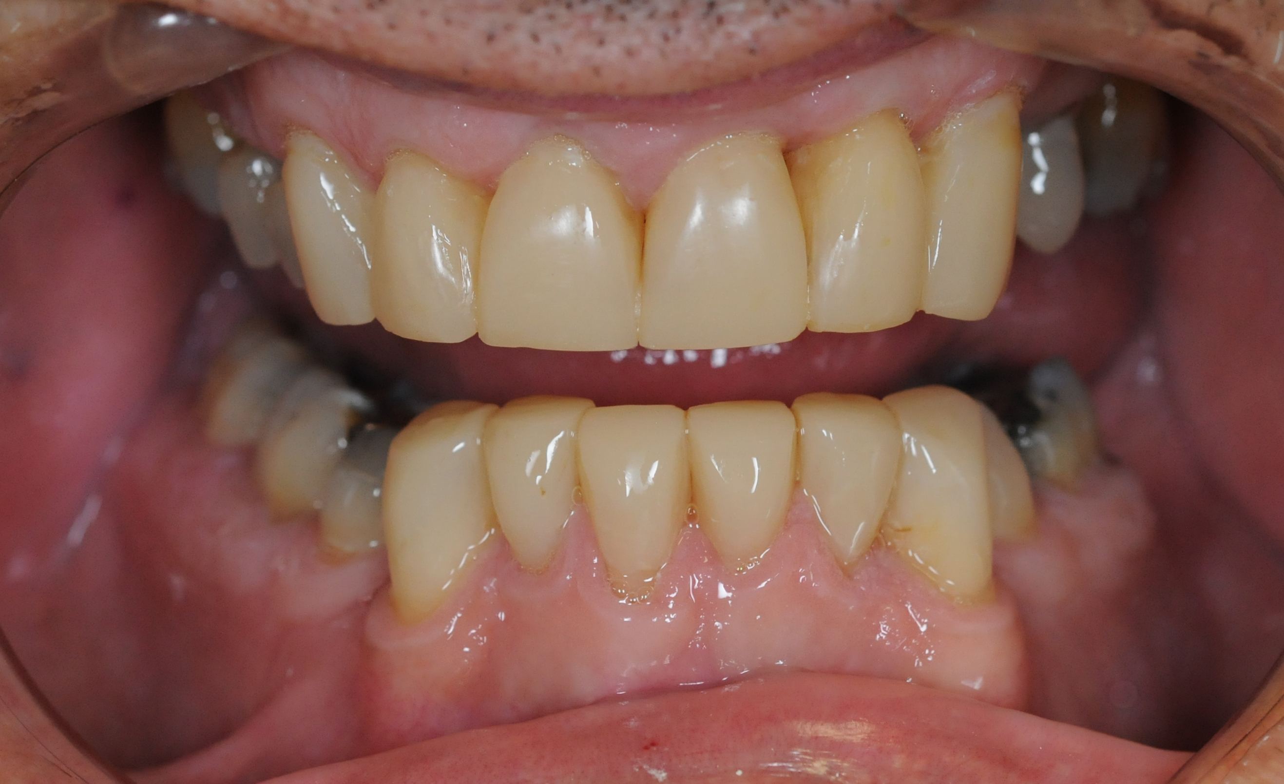 Composite and ceramic crowns and bonding